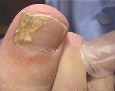 Como sanará las uñas del hongo por el método público